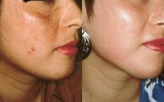#Flawless skin tips that are practical and effective must include #microdermabrasion procedure