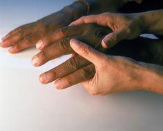 Does Rheumatoid Arthritis Shorten Your Lifespan?
