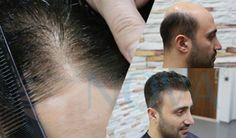 Protez Saç - Nova Hair Nova, Ear, Tattoos, Tatuajes, Tattoo, Tattos, Tattoo Designs