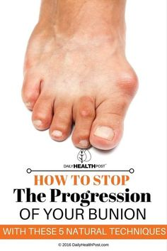 However, if they were more publicly displayed, you_d notice that many of your close friends and family probably suffer from a strange bump on the lower joint of their big toe. This rotates the big toe towards your other toes. The medical term for this condition is _bunion_�
