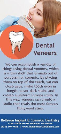 By placing veneers on top of the teeth, we can close gaps, make teeth even in length, cover dark stains ad create a uniform looking smile. #Veneers #DentalVeneers #Hollywoodsmile #PerfectSmile #Dentist