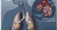 Steps to Take in Case Of Asbestos-Exposure Related Mesothelioma https://www.contrishare.com/4szy6