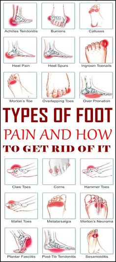 Types Of Foot Pain And How To Get Rid Of It You can experience pain in any part of your foot from toes to ankles. The Achilles tendon on the back of the heel is not an exception. Sometimes foot pain can be a simple obstacle preventing Ankle Pain, Heel Pain, Tendon D'achille, Achilles Tendon, Foot Pain Chart, Foot Pain Relief, Acupressure Points, Nerve Pain, Plantar Fasciitis