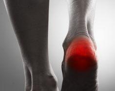 Morgens nach dem Aufstehen macht man die ersten Schritte und verspürt bei jedem Schritt diesen stechenden Schmerz in der Ferse. Nach ein paar Minuten bessert sich der Schmerz und das Laufen wird etwas angenehmer. Nach langen Phasen des Sitzens verhält es sich ähnlich. Beim Training ist es komischerweise nach einiger Zeit sogar noch besser. Woher kommt das bloß? Dies sind typische Symptome des Fersensporns.