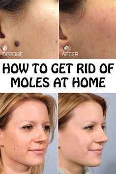 How to Get Rid of Moles at Home - Crazy Beauty Tricks