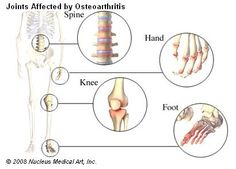 Osteoarthritis is the breakdown of cartilage in the joints. This is followed by chronic inflammation of the joint lining. Healthy cartilage is a cushion between the bones in a joint. Osteoarthritis usually affects the hands, feet, spine, hips, and knees. People with osteoarthritis usually have joint pain and limited movement of the affected joint.