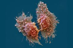 Cancer cells || Image Source: https://d1o50x50snmhul.cloudfront.net/wp-content/uploads/2016/03/c0290303-cancer_cells_sem-spl-1200x800.png