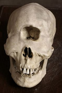 Just too weird! Skull deformities - I don't know if any of them are real, but they're certainly bizarre!