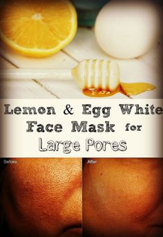 Homemade facemask of egg white and lemon for Large Pores