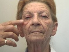 Applying Acupressure Facelift Workout Routines To Develop Your Face And Neck