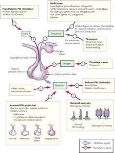 Diagnosis and management of hyperprolactinemia