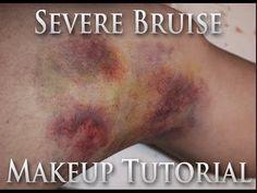 Severe Bruise Skin Illustrator FX Makeup Tutorial