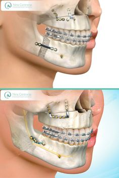 Cirugía Oral y Maxilofacial, indicada en asimetrías faciales y alteraciones en el desarrollo de los maxilares!  Contáctenos y déjanos conocer tu caso: 6571629 - WhatsApp: 3008934528 http://ninacontrerascmf.com/cirugia-oral-y-maxilofacial/