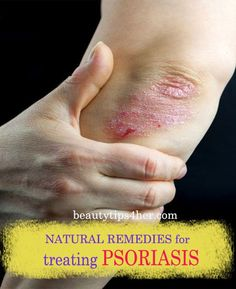 Natural Remedies for Psoriasis.What is Psoriasis? Causes and Some Natural Remedies For Psoriasis.Natural Remedies for Psoriasis - All You Need to Know Psoriasis On Face, Psoriasis Diet, Plaque Psoriasis, Psoriasis Disease, Severe Psoriasis, Psoriasis Treatment Cream, Psoriasis Cream, Nursing, Psoriasis Remedies