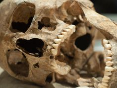 Ancient Chompers Were Healthier Than Ours