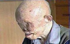 This is what a nuclear fallout victim looks like.