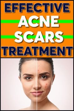 Herbal acne scaring treatment will clean face from black spot. After this essential oils your skin condition lightening more than before. It provides natural acne scaring remedies. Now you have anti acne skin care with special formula. You can see results in just a few weeks. It heals to skin with herbal anti acne skin product. #skincare #acne #beauty #cosmetic #immune #ClearSkinDetox Skin Moles, Acne Skin, Acne Scars, Face Moles, Scar Treatment, Brown Spots On Skin, Dark Spots, Skin Growths, Home Remedies