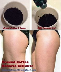 Coffee Grounds Exfoliating Scrub Cellulite Remedy