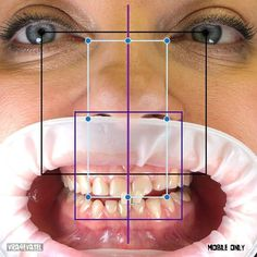 Cosmetic Dentistry, Cosmetics, Medicine, Dental Art