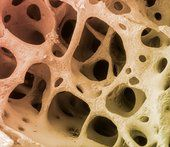 Science Photo Library-Bone Tissue
