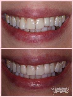 How to whiten sensitive teeth! - Sugar Fix Dental Loft Dental Implant Surgery, Teeth Implants, Tooth Extraction Care, Dentist Day, Teeth Whitening That Works, Dental Bridge, Dental Crowns, Teeth Care, Cosmetic Dentistry