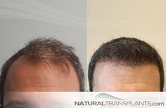 Hair Plantation Best Transplant Clinic Specia Chandigarh Loss New Cool Hairstyles Swag
