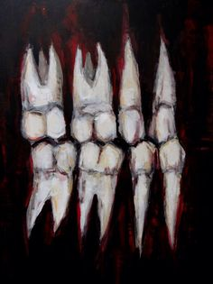 Occlusion Artwork - Painting of Teeth Grinding - Original Black Acrylic Painting on Panel - Size 18x24 - Dentist Art by strangepainting on Etsy https://www.etsy.com/listing/198508414/occlusion-artwork-painting-of-teeth