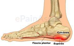 O sintoma mais desagradável do esporão de calcanhar é a intensa dor.