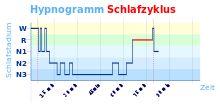 Klartraum – Wikipedia