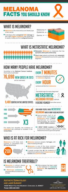 Melanoma facts you should know.