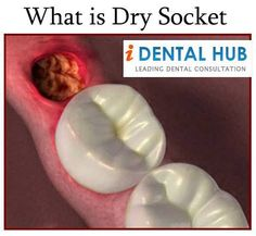 how to avoid dry socket after tooth pulled