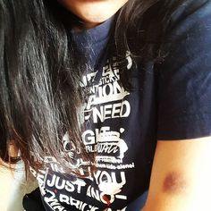 This enormous #bruise is just getting angrier. I think it's from last Friday when they took 9 vials of my blood and wrapped the strap perhaps a touch too tight around my arm.  #battlewounds #cancersucks #heyimstillhere #princessmargaret #pain #lyrics