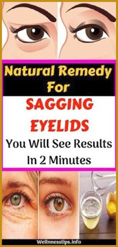 Natural Remedy for Sagging Eyelids You Will See Results In 2 Minutes! - Organic Remedies Tips Holistic Remedies, Holistic Healing, Natural Healing, Health Remedies, Home Remedies, Natural Remedies, Health Guru, Health And Wellbeing, Health And Nutrition