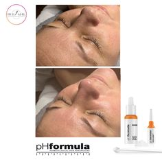 Excellent skin resurfacing results from our pHformula skin specialists in Denmark. Thank you for sharing these great results Skin Resurfacing, Skin Specialist, Skin Brightening, Genetics, Healthy Skin, Denmark, Work Hard, Improve Yourself, Beauty
