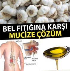 The Benefits of Taşköprü Garlic for Lumbar Hernia – Diet and Nutrition Health And Wellness, Health Fitness, Health Goals, Garlic Benefits, Natural Health Remedies, Homemade Beauty Products, Diet Menu, Health Articles, Detox Recipes