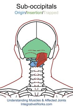 Sub-occipital muscles - #headache or #migraine in a band or all over the head