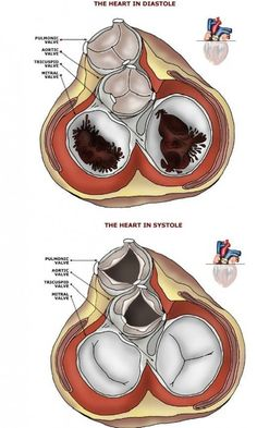 Structural Heart FACTS: The Four Heart Valves. Mitral and Tricuspid valves and the aortic and Pulmonic Valves BIRDSEYE VIEW http://blog.nclexmastery.com/ #cardiacnursing