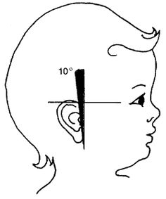 Image showing a 10 degree earslant on a child for screening purposes.