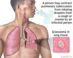 penyembuhan penyakit tbc akut penyembuhan penyakit tbc akut penyembuhan penyakit tbc akut penyembuhan penyakit tbc akut