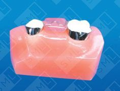 This two-band space maintainer has an acrylic pad over the edentulous region. It is designed with the occlusal surface of the pad in function with the opposing teeth and the tissue side-cleared to eliminate any interference with the normal eruption of succedaneous teeth.