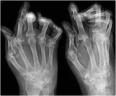 Abortion Rate in Women Could Be Affected By Medications Used to Treat Rheumatoid Arthritis