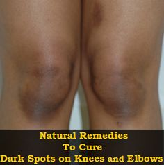 Dark Spots on Knees and Elbows - Top 5 Ingredients For Treating Dark Discolorations Revealed Health And Beauty Tips, Health Tips, Natural Beauty Remedies, Cloud Bread, Skin Tag Removal, First Health, Stretch Marks, Dark Spots, Dark Circles