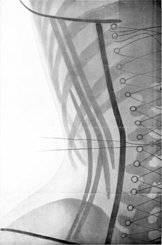 1908: X-Rays of Women in Corsets