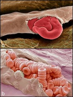 Coloured scanning electron micrograph (SEM) of a red blood cell squeezing out of a torn capillary. A capillary is the smallest type of blood vessel, often only just large enough for red blood cells to pass through.