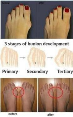How to prevent and treat bunions. Simple, easy-to-do exercises to remedy or prevent bunions or hammertoes. It can even - possibly - help you avoid surgery! Health And Beauty Tips, Health Tips, Health And Wellness, Health Fitness, Natural Cures, Natural Healing, Natural Beauty, Health Remedies, Home Remedies