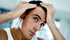 Seja curioso, alopecia no doente oncológico