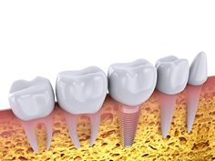 If you are self-conscious about missing teeth or wearing dentures, you can regain your confidence with dental implants. Dental implants will also restore the function of your teeth, and protect the appearance of your face! Implants Dentaires, Dental Implants, Dentist Day, Tooth Replacement, Dental Bridge, Dental Crowns, Wisdom Teeth, Unwanted Hair, Healthy Teeth