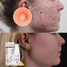 RtopR Propolis Repair Acne Brightening Serum Acne Scar Spots Cleaning Serum Shrink Pores Eliminates Acne Treatment Oil control in 2019 Serum, Back Acne Treatment, Propolis, Acne Spots, Shrink Pores, Skin Care Cream, Chemical Peel, How To Get Rid Of Acne, Face Skin Care