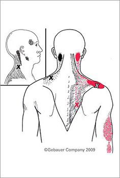 How Myofascial Trigger Points Develop, and What to Expect from Treatment Chronic Pain, Fibromyalgia, Chronic Illness, Occipital Neuralgia, Referred Pain, Trigger Point Therapy, Muscle And Nerve, Tension Headache, Massage Techniques