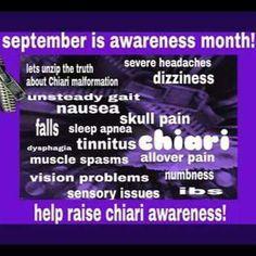 Chiari Malformation Awareness